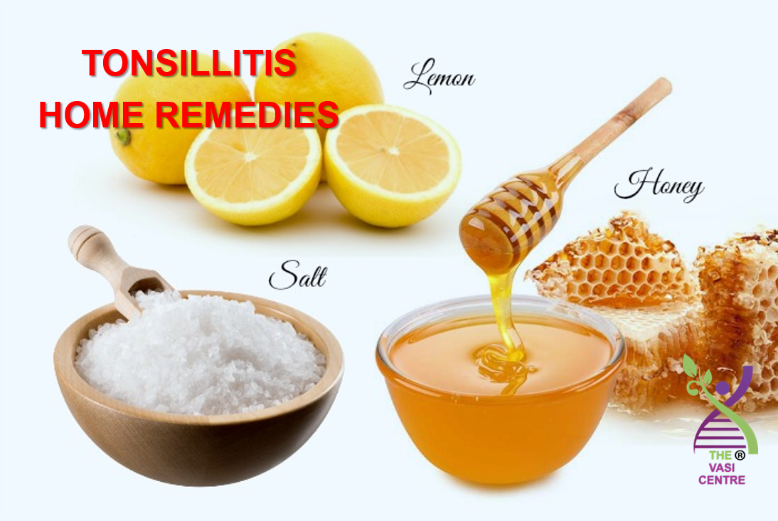 VASI - tonsillitis home remedies